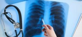 Излечим ли туберкулез?
